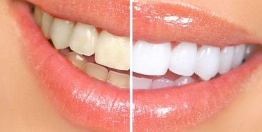 dentes-696x336