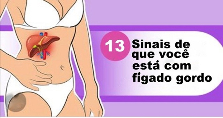 1 em cada 5 pessoas tem sem saber a doença do fígado gordo – aqui estão os 13 principais sintomas