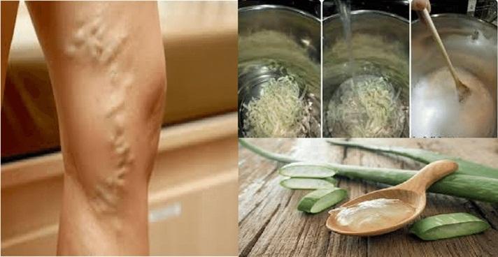 Se você tem varize nas pernas é porque ainda não conheceu essas 2 poderosas receitas