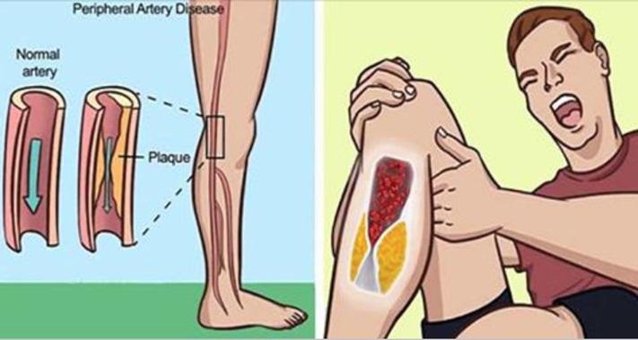 8 Sinais de que suas artérias estão entupidas, e como resolver o problema com tratamentos naturais