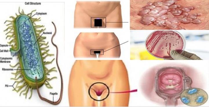 Mycoplasma genitalium: uma doença sexualmente transmissível que está se alastrando e assustando médicos