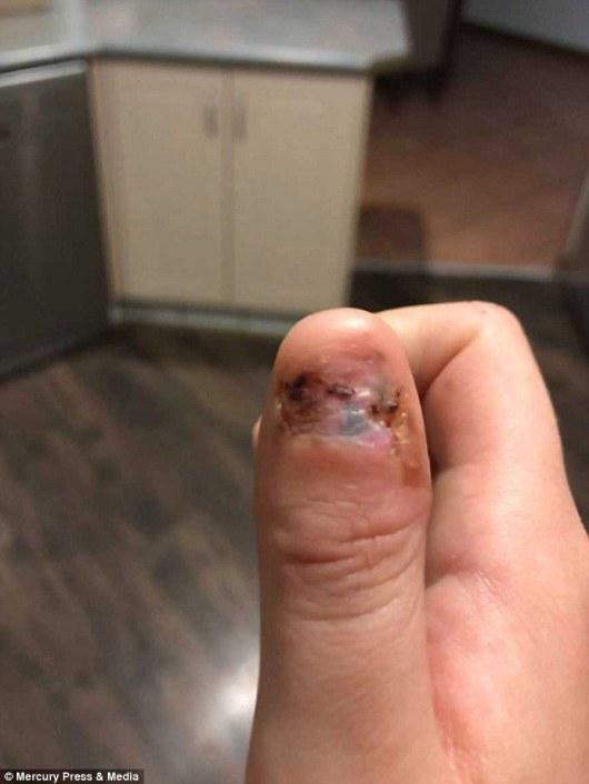 polegar-amputado-cancer