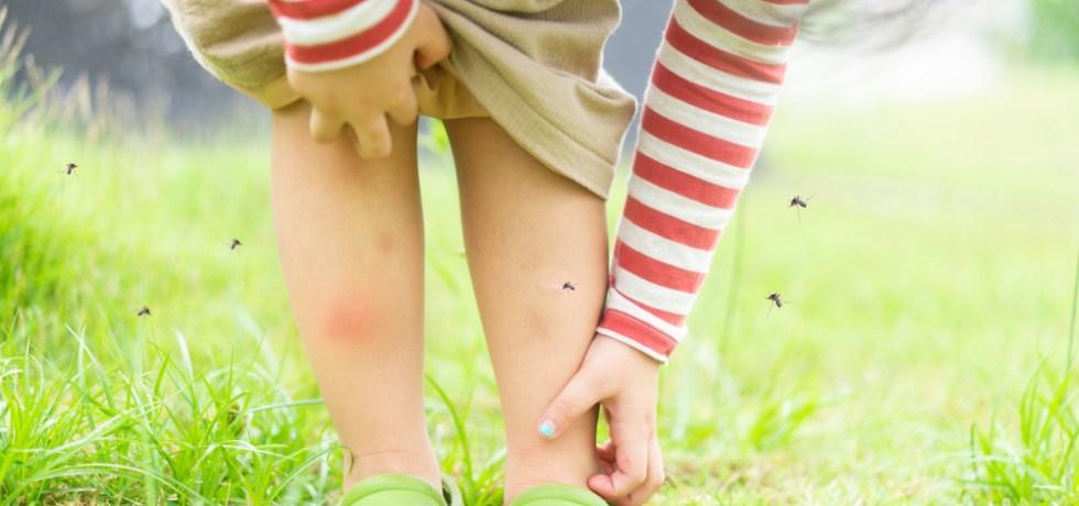 dziecko pogryzione przez komary