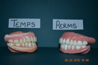 Temporary vs  Permanent Dentures   iweardentures!