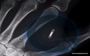brisbane-man-receives-microchip-implant-to-connect-to-iphone-6-mark-of-the-beast-666