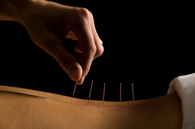 acupuntura barra da tijuca