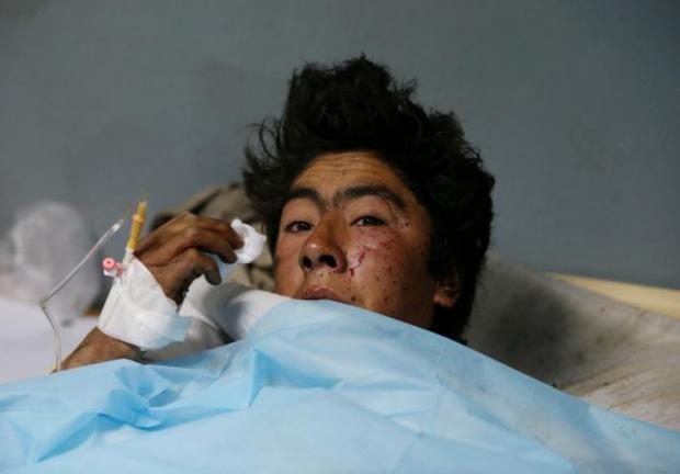 An injured man receives treatment at a hospital after a suicide attack in Kabul, Afghanistan November 21, 2016. REUTERS/Mohammad Ismail