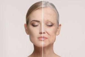 woman-face-anti-aging