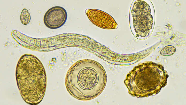 Should You Deliberately Infect Yourself With An Intestinal Worm For Your Health?