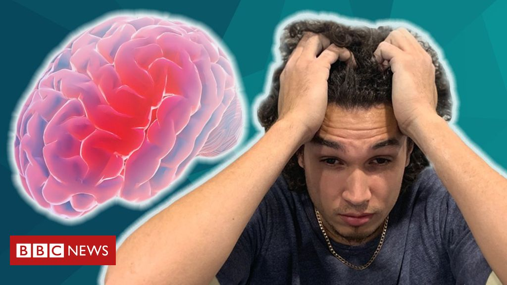 Migraines: Calls for new drug on NHS