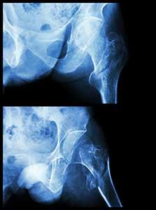 Hip Fractures Statistics