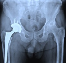 depuy hip x-ray
