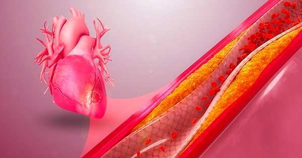 colesterolo ldl sottoclasse b