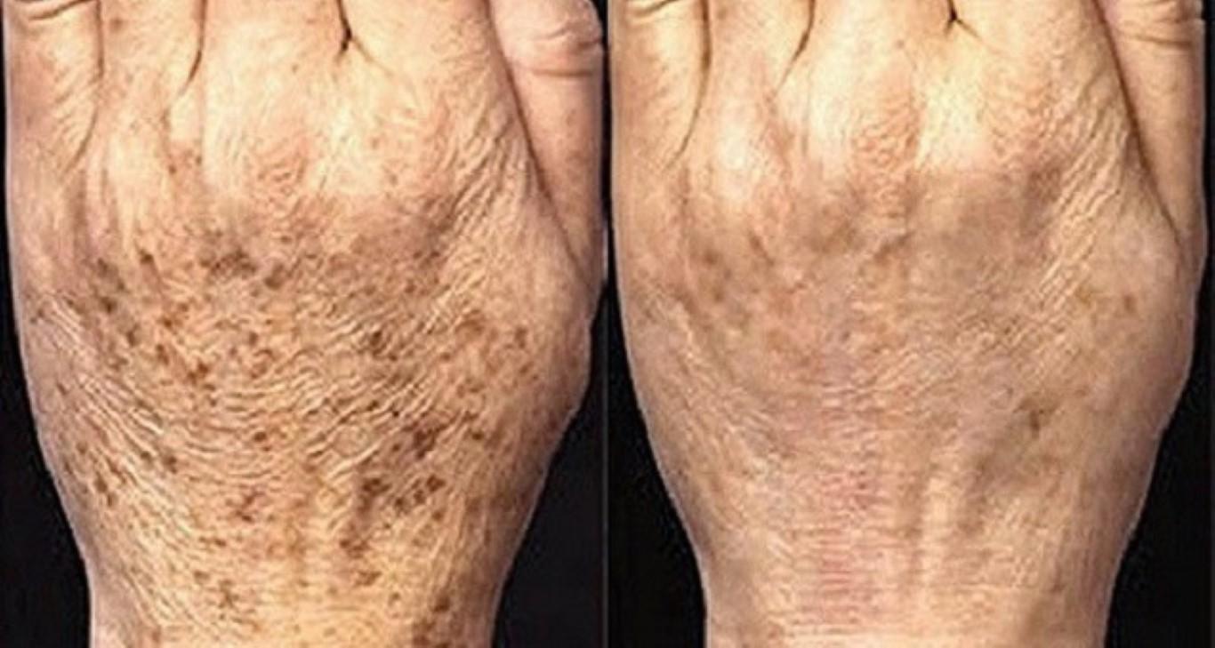 Resultado de imagen para manchas de la edad
