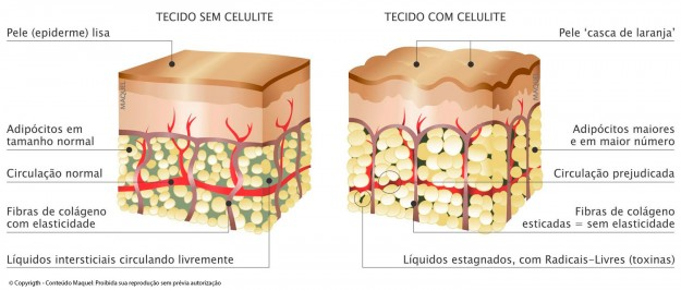 celulite