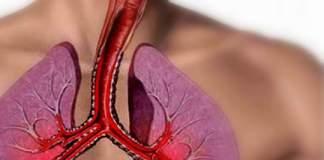 nutrição e asma