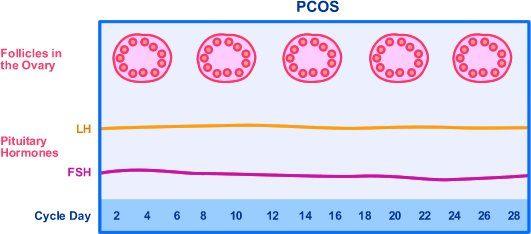dieta cetogenica ovarios poliquisticos