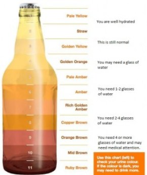 urine color test bottle with notes