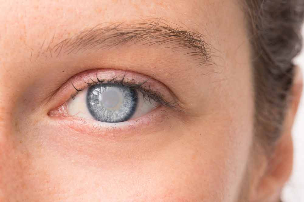 Types of Cataracts: Nuclear,after-cataract的中文, Cortical & Others | NVISION Eye Centers