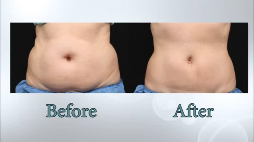 Coolsculpting with Hull Dermatology and Aesthetics_75466438-159532