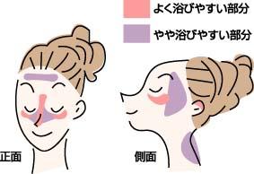 日焼けがしやすい顔の箇所