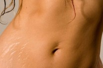 How to Naturally Get Rid of Stretch Marks