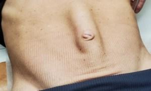 Before diastasis surgery