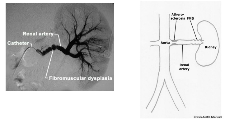 Vein Diagram With 3 Fibromuscular Dysplasia Nyc Surgical Associates
