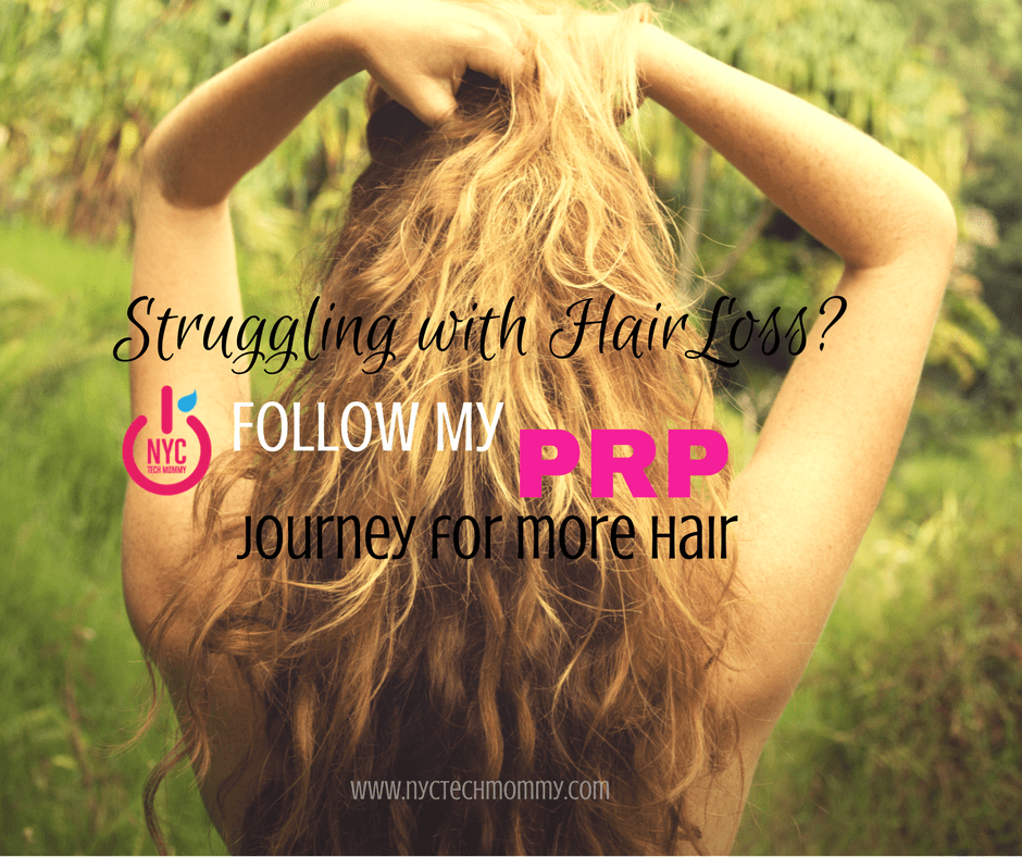 Struggling With Hair Loss Follow My Prp Journey For More