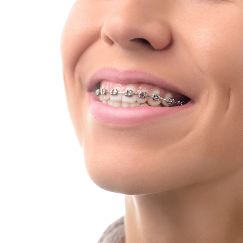 prevent tooth decay in kids with braces