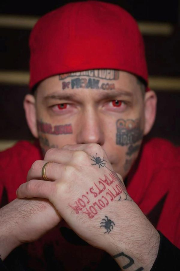 Billy Human Billboard Face Tattoos Removed