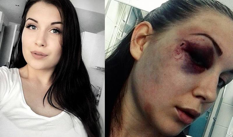 Toistuvien Pahoinpitelyjen Uhri 20 Vuotias Ada Uskaltakaa Hakea Apua Ajoissa