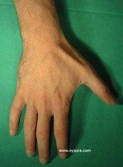 digital nerve block - nysora