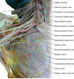 figure 12 dissection of the brachial plexus  [ 2000 x 1222 Pixel ]