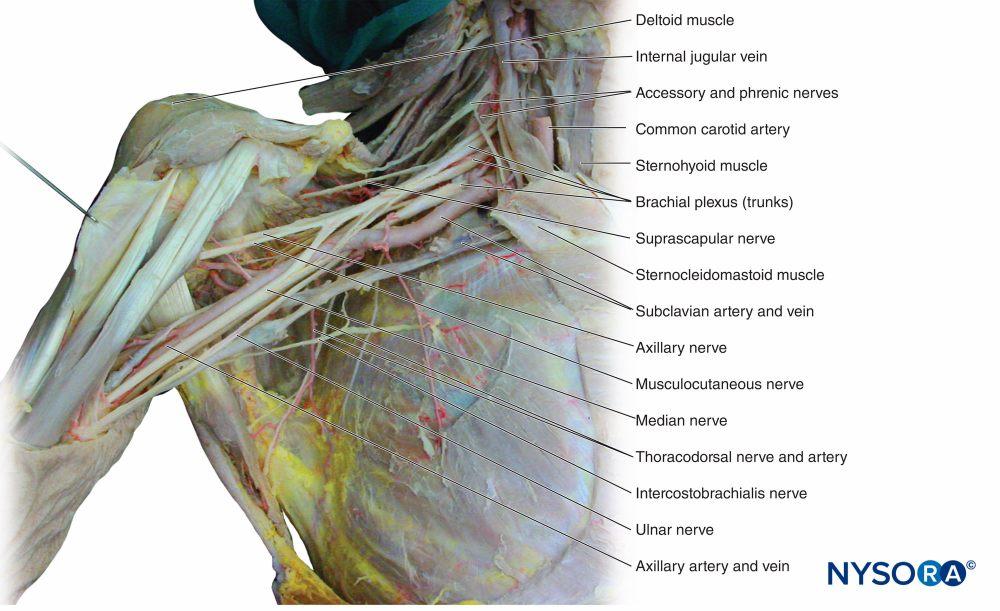 medium resolution of figure 12 dissection of the brachial plexus