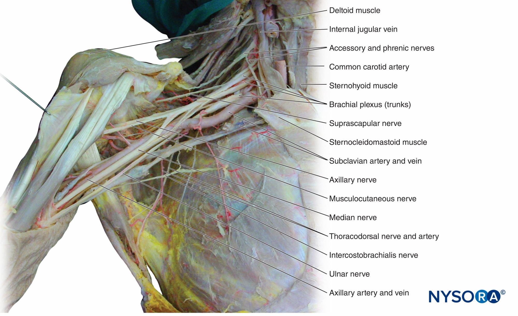 hight resolution of figure 12 dissection of the brachial plexus