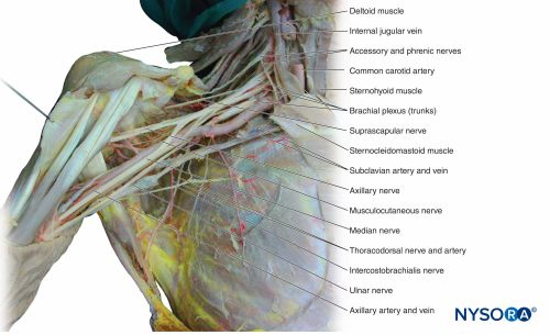 small resolution of figure 12 dissection of the brachial plexus