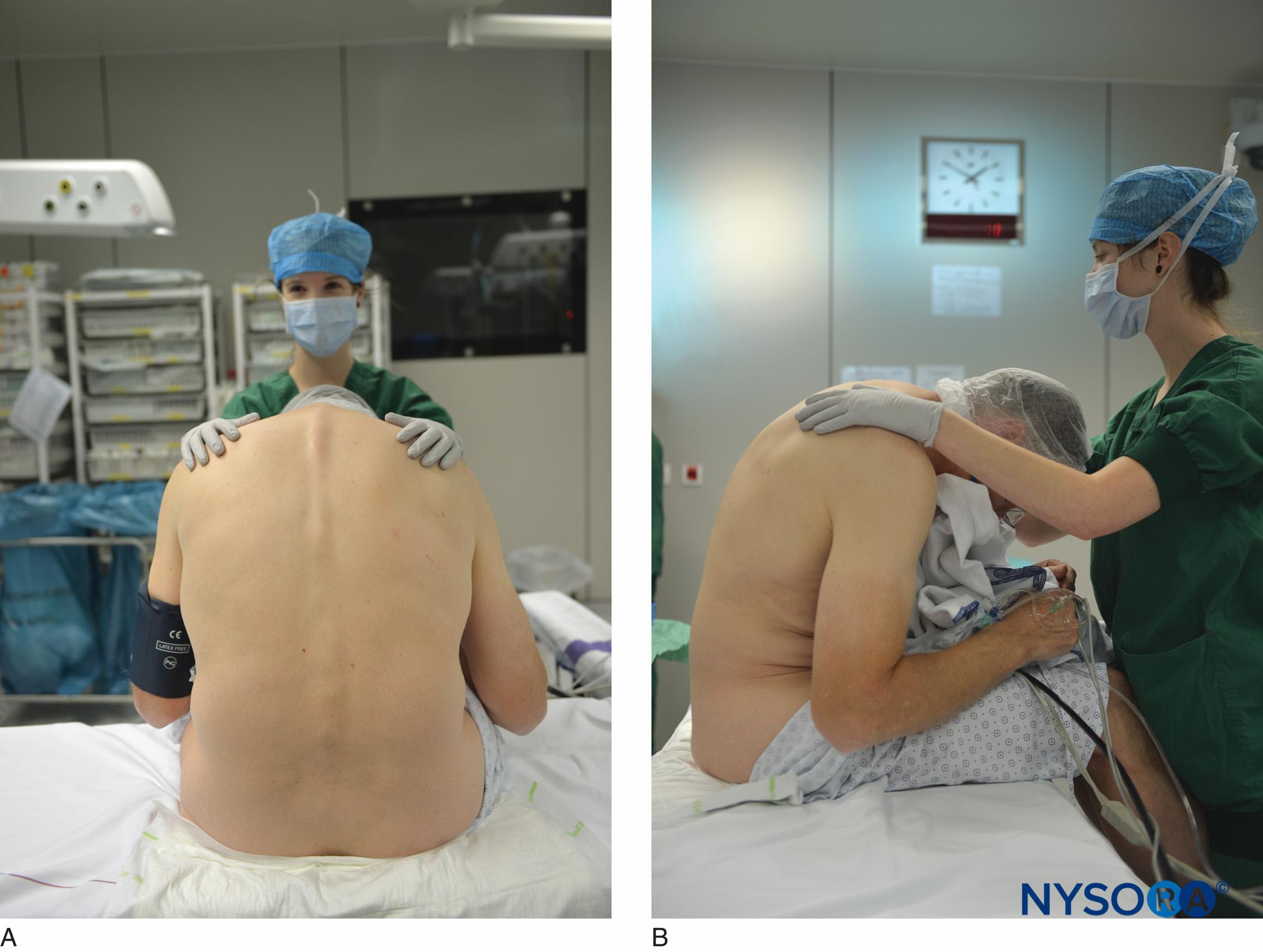 Epidural Anesthesia and Analgesia  NYSORA