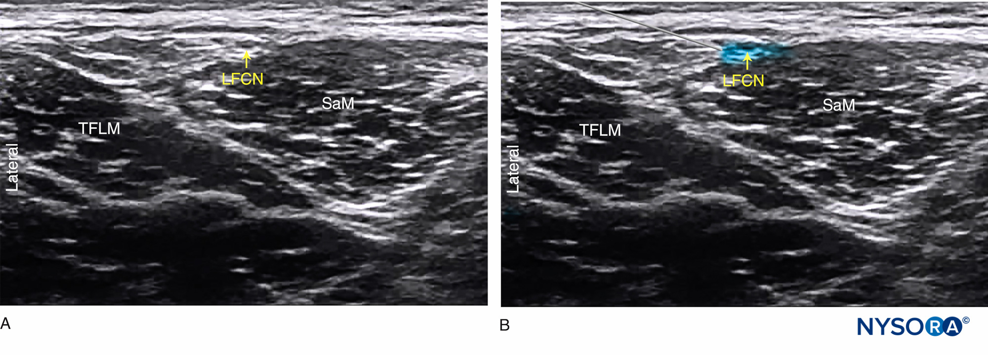 Ultrasound-Guided Lateral Femoral Cutaneous Nerve Block ...