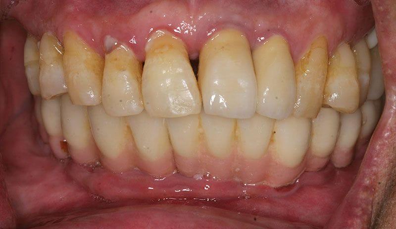 牙周病治療 - 黃經理牙醫診所