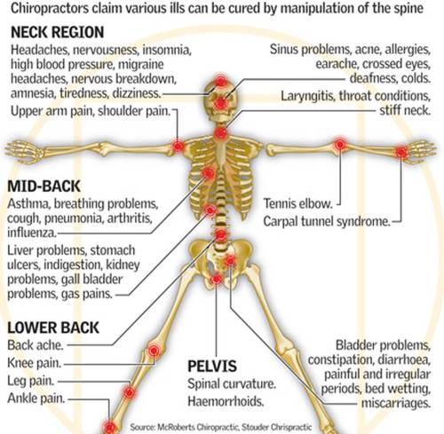 small resolution of spinal care costs nz 13 5 million a year