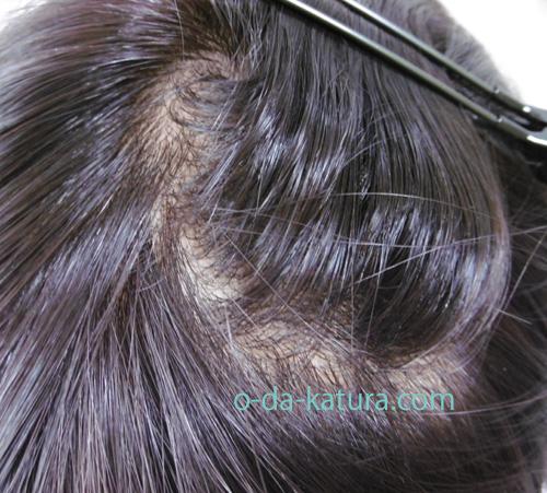 医療用フルウィッグを自分の髪で作る