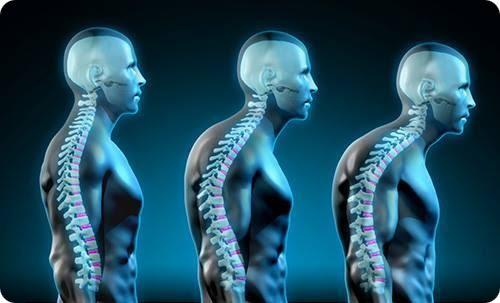 Forward Head Posture Fix Review: IS IT A SCAM?