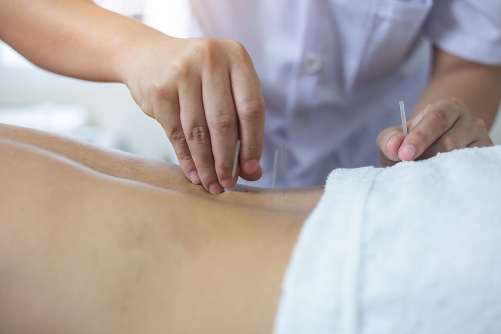Acupuncture during Pregnancy and Its benefits : Oakville ...