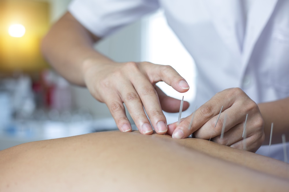 Oakville Acupuncture Clinic - Safe, Effective, and Painless