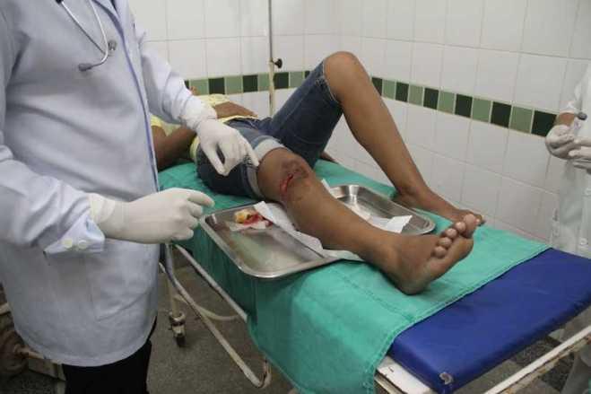 Karina teve um corte no joelho devido os ferros colocados para segurar as pranchas poderes - Foto: Alexandre Lima