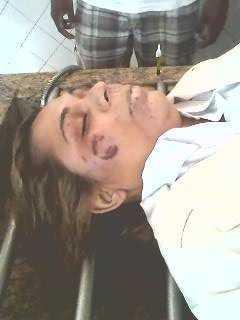 Rosto de Patrícia mostrava sinais de mordidas e agressão por espancamento - Foto: cedida