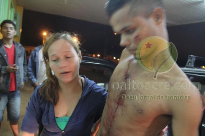 A vítima chegou andando após ser socorrido por parente e terceiros - Foto: Alexandre Lima