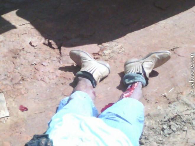 Pernas, bacia e costelas foram esmagadas pela caçamba que carregava barro