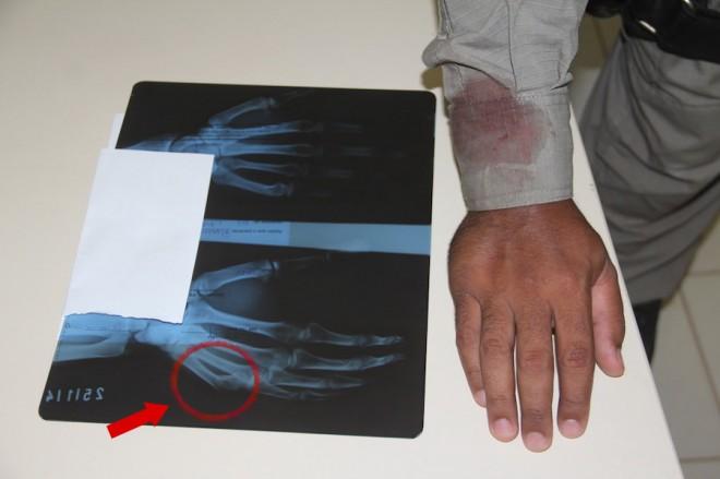 Raio-x mostra osso quebrado da mão do policial que tentava deter Gilson - Foto: Alexandre Lima